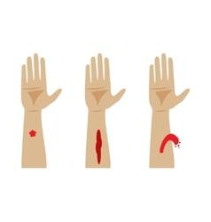 Types bleeding vector