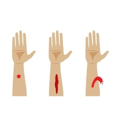 Types of bleeding vector