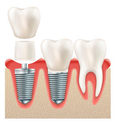 Dental implant set eps 10 vector