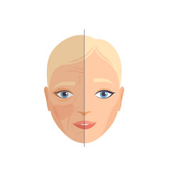 Face woman before and after cosmetic procedure vector
