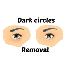 dark circles under eyes to remove vector image