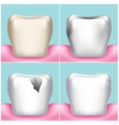 Dental problems caries plaque and gum disease vector