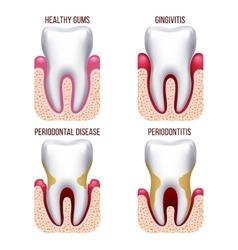 Human gum disease gums bleeding Tooth prevention vector image