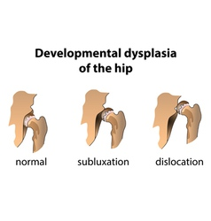 Dysplasia of the Hip vector image