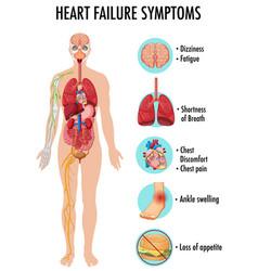 Heart failure symptoms information infographic vector