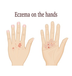 Eczema on the hands vector