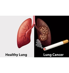 Healthy lung against lung cancer diagram vector