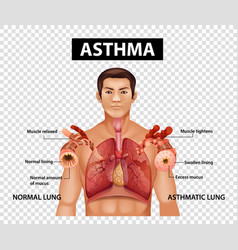 Diagram showing asthma on transparent background vector