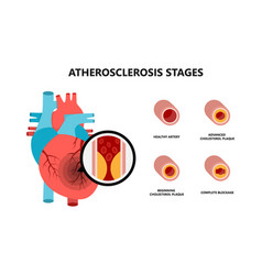 Human heart anatomy with atherosclerotic plaque vector