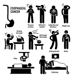 Esophageal esophagus throat cancer symptoms vector