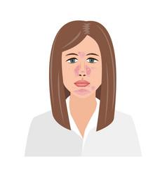 Unhappy woman suffering from seborrheic dermatitis vector