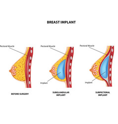 Cartoon of Plastic surgery of breast implant vector image vector image