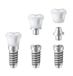 dental implants set medical and dentist vector image