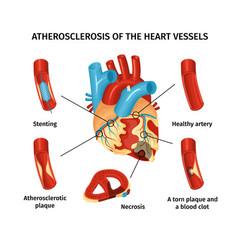 Heart anatomy infograpics vector