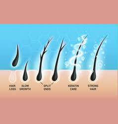 Different hair problems and deep salon treatment vector