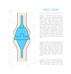 Medical knee joint vector