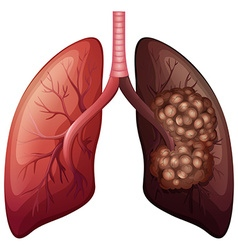 Normal lung and lung cancer vector image