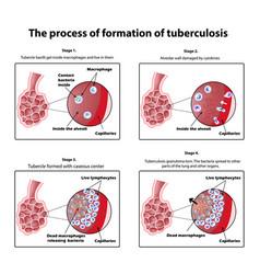 Process tuberculosis formation vector