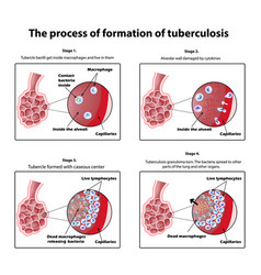 The process of tuberculosis formation vector