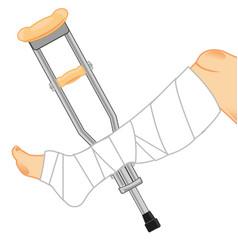 Gypsum on leg and crutches vector