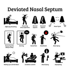 Deviated nasal septum icons depict signs vector