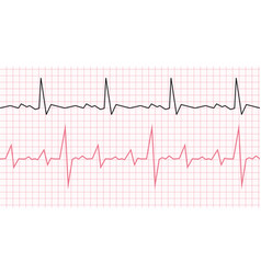 Cardiogram on a graph paper heartbeat line vector