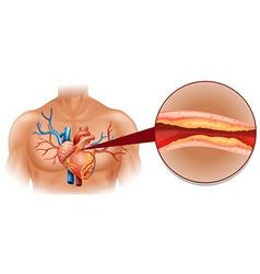 Cholesterol in human heart vector image