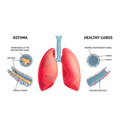 Human lung anatomy infochart vector