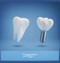with realistic dental implant and healthy tooth vector image