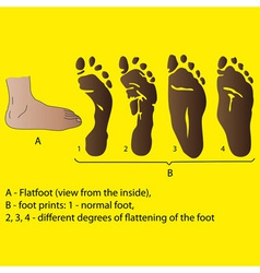 Different degrees of flattening of the foot medici vector