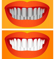 Care of teeth vector image