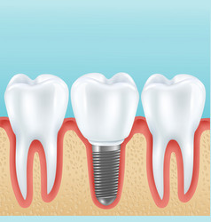 Dental implant realistic vector