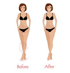 woman epilation concept - before and after vector image