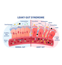 Leaky gut syndrome concept vector