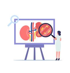 Pyelonephritis kidney healthcare concept tiny vector