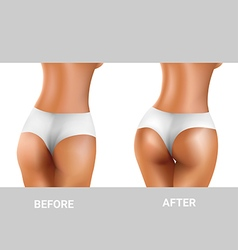 Before and after buttocks exercise vector