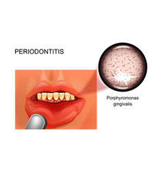 Periodontitis bleeding gums vector