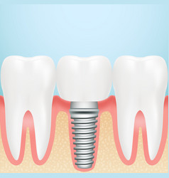 Realistic dental implant installation of dental vector
