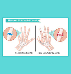 Scientific medical rheumatoid arthritis vector