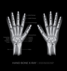 Hand bone x-ray vector