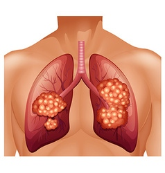 Lung cancer in human vector image vector image