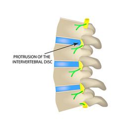 Protrusion of the intervertebral disc vector