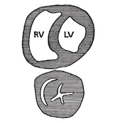 Transverse section through the ventricle of a vector
