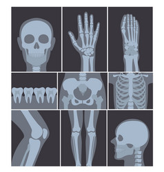 Set of x-rays shots hand vector