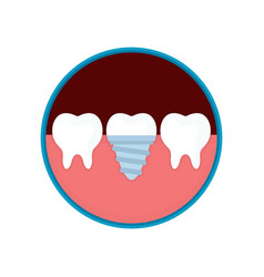 dental implant in mouth with replacement vector image