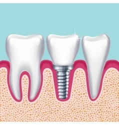 Human teeth and dental implant in jaw orthodontist vector
