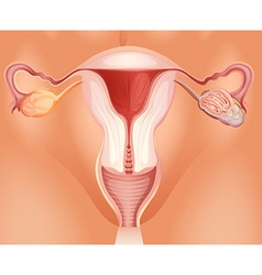 Ovarian tumor in woman vector image