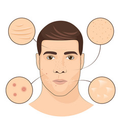 Man portrait with facial treatments face skin vector