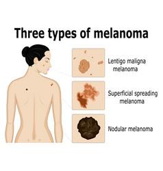 three types of melanoma vector image vector image