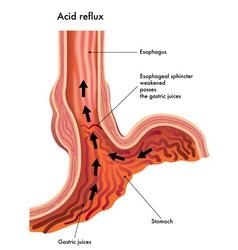 Acid reflux vector image